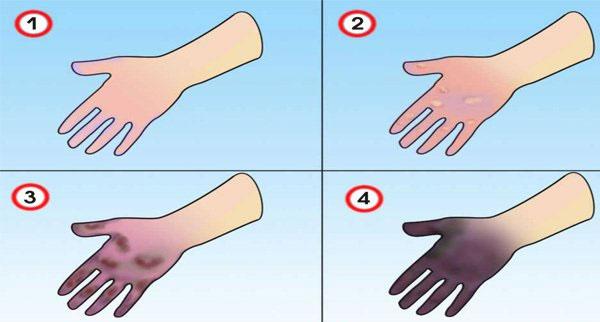 Обморожение пальцев рук: что делать