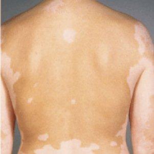 Причины появления и основы лечения белых пятен на спине