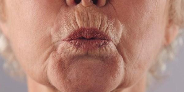 Как убрать кисетные морщины вокруг губ