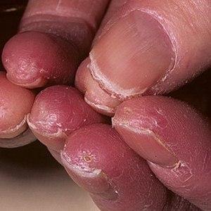 Почему на ногтях появляется грибок?