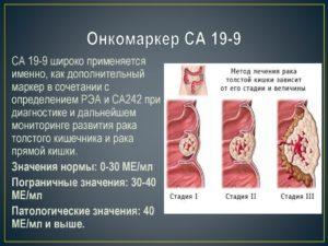 са 19 9 онкомаркер расшифровка