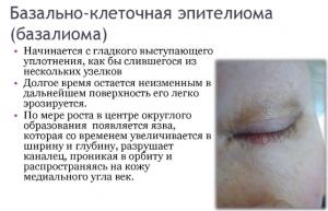 Эпителиома