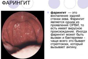 Чем лечить сухой кашель при фарингите