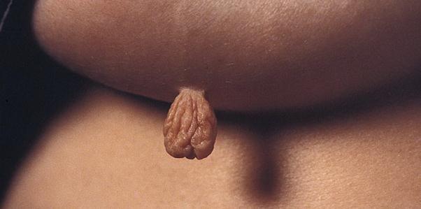 Какие бывают папилломы на теле фото