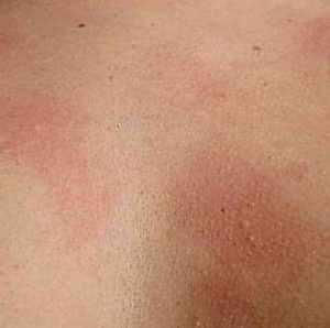 Тепловая крапивница - лечение, причины и фото