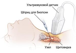 таб узла щитовидной железы под контролем узи