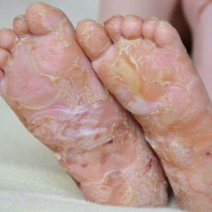 Буллезный эпидермолиз, или болезнь бабочки: когда кожа не выполняет своих функций