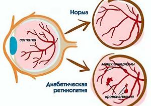 пролиферативная диабетическая ретинопатия