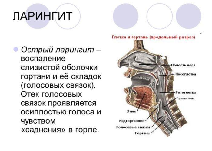 Ларингит