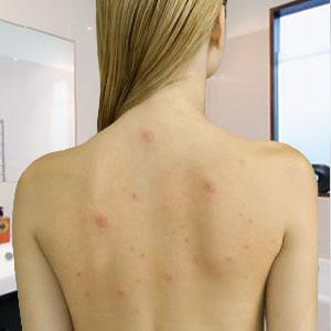 Методы лечения герпеса на теле