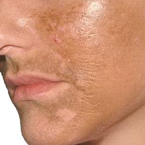 Причины и виды гиперпигментации кожи