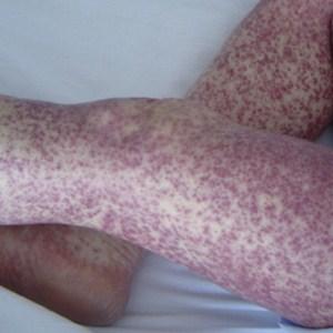 Признаки и терапия вирусного дерматита у детей и взрослых