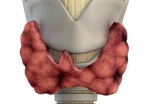 фокально диффузное изменение щитовидной железы