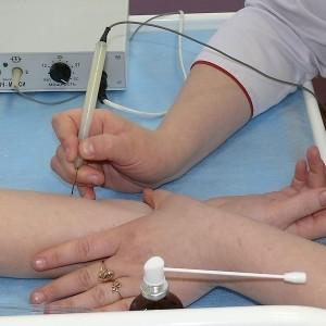 ✋Причины появления и методы лечения папиллом на руках