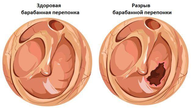 При баротравмах уха процедура противопоказана