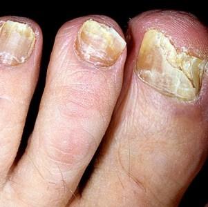 Как сдать анализ для диагностики грибка ногтей
