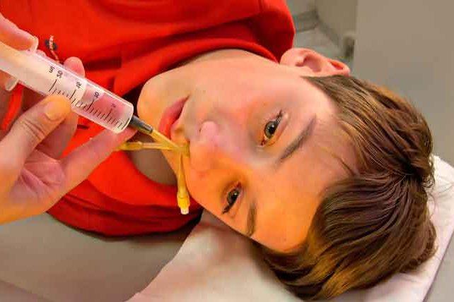 Промывание носа диоксидина