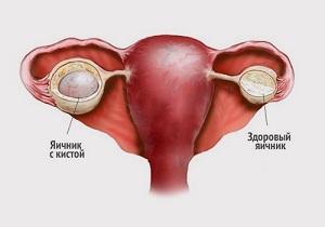 киста яичника симптомы и лечение женщины