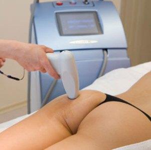 Лечение целлюлита лазером: преимущества, противопоказания и особенности проведения