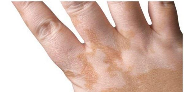 Белые пятна на коже у взрослых и детей