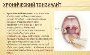 Хронический тонзиллит одна из причин появления дырок в миндалинах