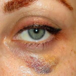 Коррекция филлерами носослезной борозды