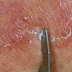 Применение мази и крема Тридерм в дерматологии