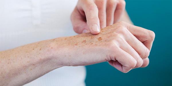 Особенности развития и лечения актинического кератоза