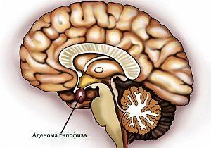 Аденома гипофиза - причины возникновения, симптомы и лечение