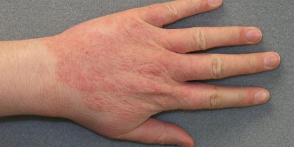 Почему у ребенка возникает аллергия на сгибе локтя и как ее лечить