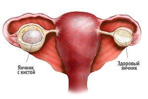 Красные пятна в паху у женщин: возможные причины и способы лечения