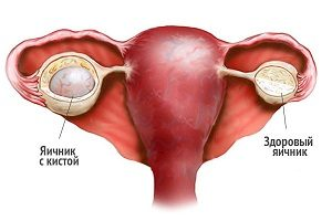 функциональная киста яичника