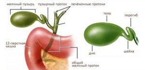 Перегиб протока желчного пузыря
