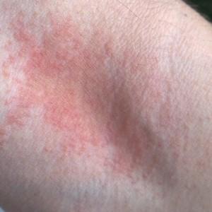 Атопический дерматит: особенности возникновения и протекания заболевания