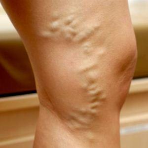 Мезотерапия — действенное средство в борьбе с целлюлитом