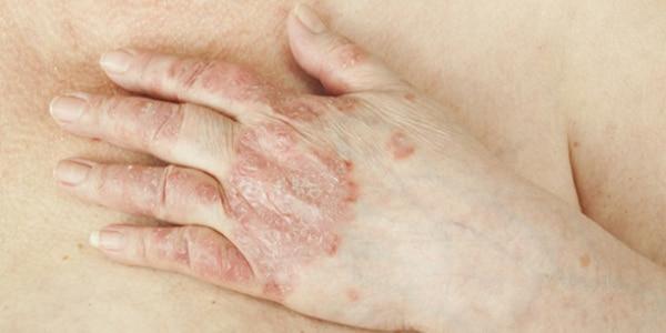 Лечебное действие уксуса при псориазе и способы его применения