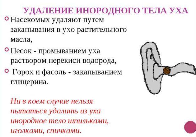 Удаление инородного тела уха