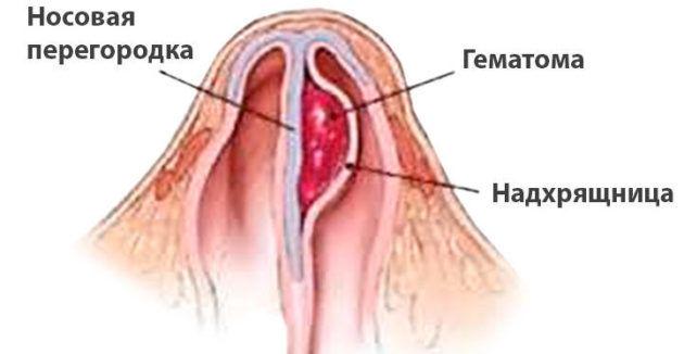 Гематома после операции