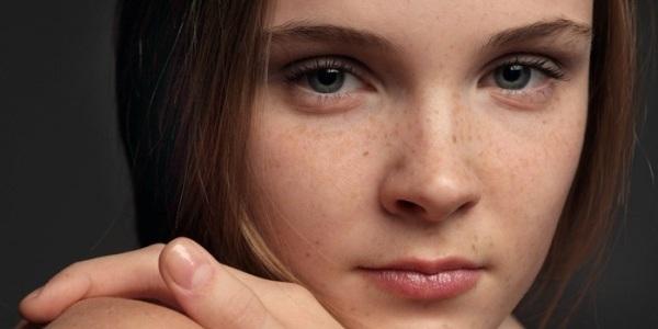 Применение касторового масла для устранения пигментных пятен на лице