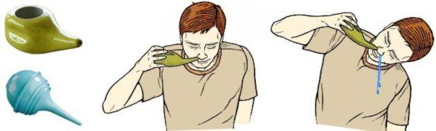 Промывать носовой ход