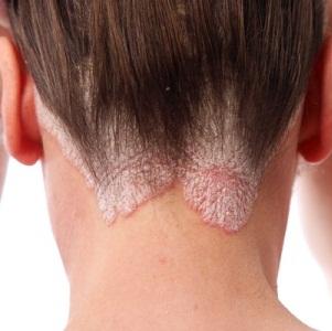Симптомы и терапия хронического дерматита