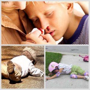 Причины перелома носа у детей