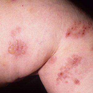 Дерматит Дюринга: что нужно знать о болезни