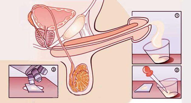 Этапы сдаввания спермы