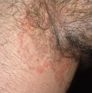 Причины возникновения и способы лечения пятен на коже с красным ободком