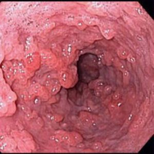 Чем опасна папиллома в желудке, как от нее избавиться