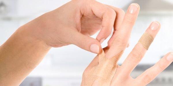 Как обработать рану после удаления папилломы