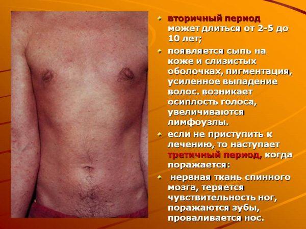 Вторичный сифилис носа
