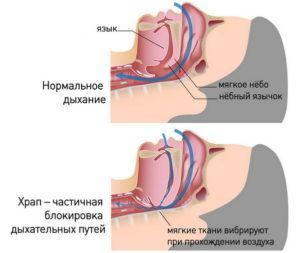 Анатомия храпа