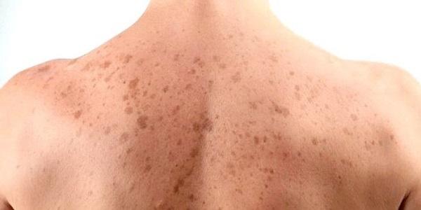 Причины появления и методы лечения пигментных пятен на спине